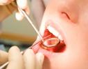 7 tipp a fogzománc elvékonyodása ellen