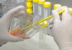 Őssejtekkel a donorszervek kilökődése ellen